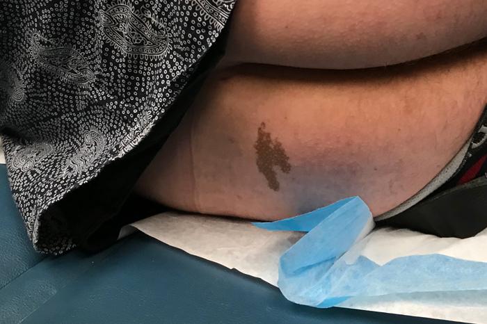 Brent Hatley's birthmark
